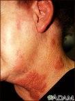 Hespes en cara y cuello
