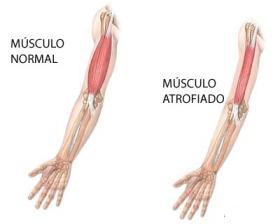 musculo_atrofiado