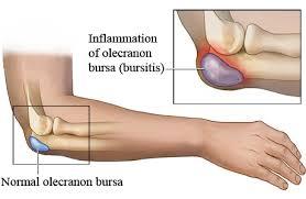Bursitis codo